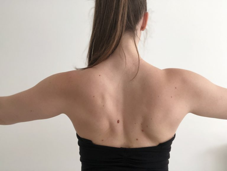 Read more about the article La winging scapula